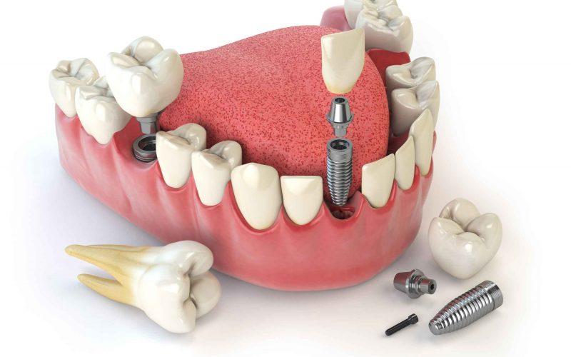 implantes dentales sa pobla mallorca