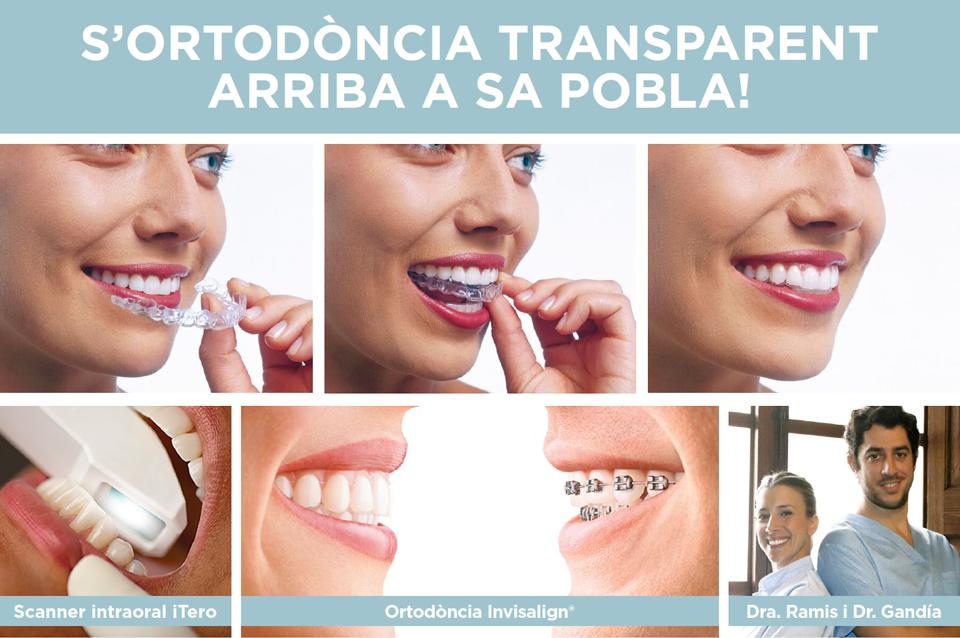 Clinica Dental Mallorca Ramis Tauler Invisalign Mallorca