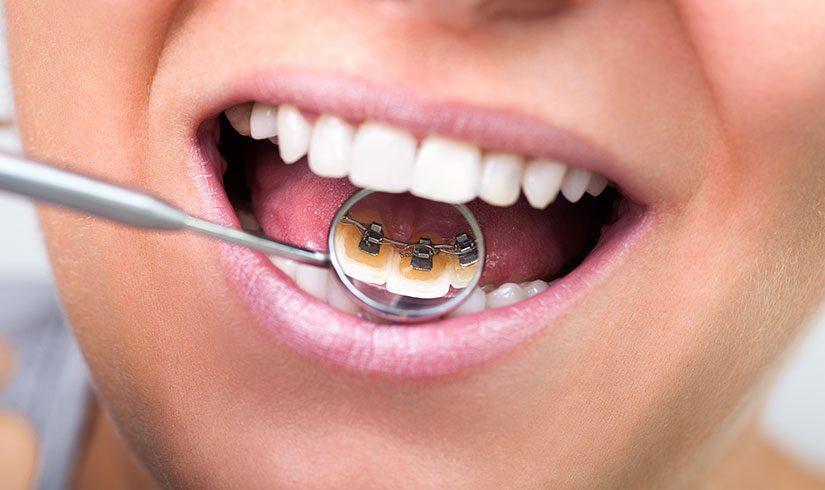 Ortodoncia lingual - Brackets linguales