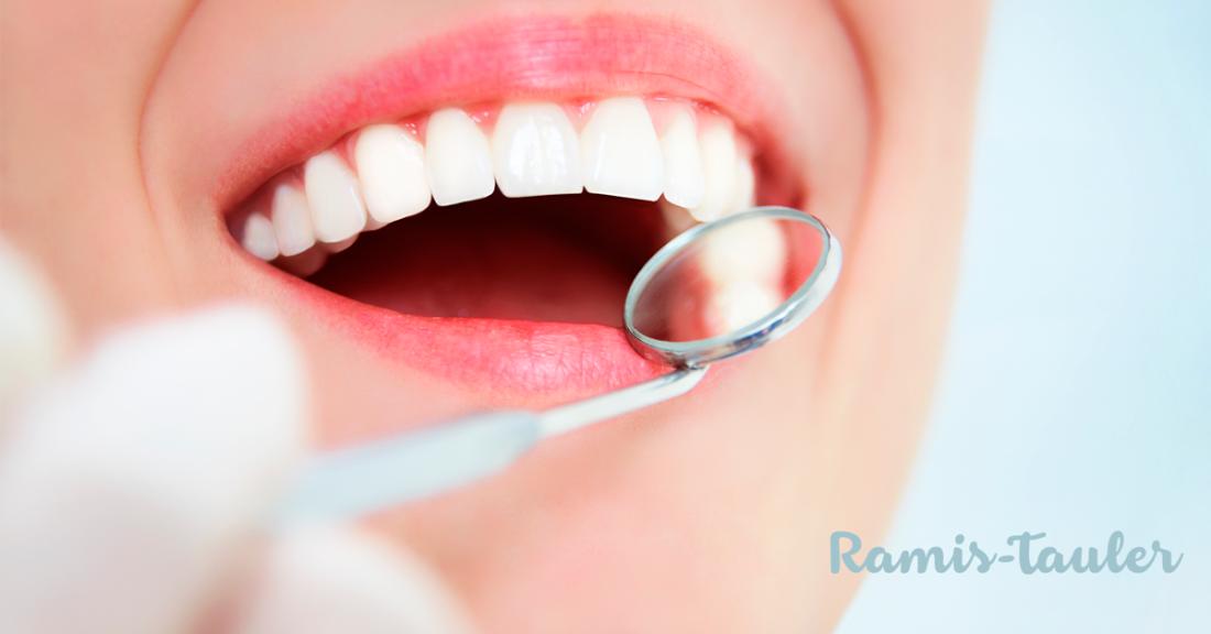 Limpieza dental - Qué es, cómo se hace y precio - Clínica Dental Ramis Tauler