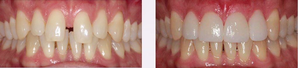 Intraoral Frontal copia