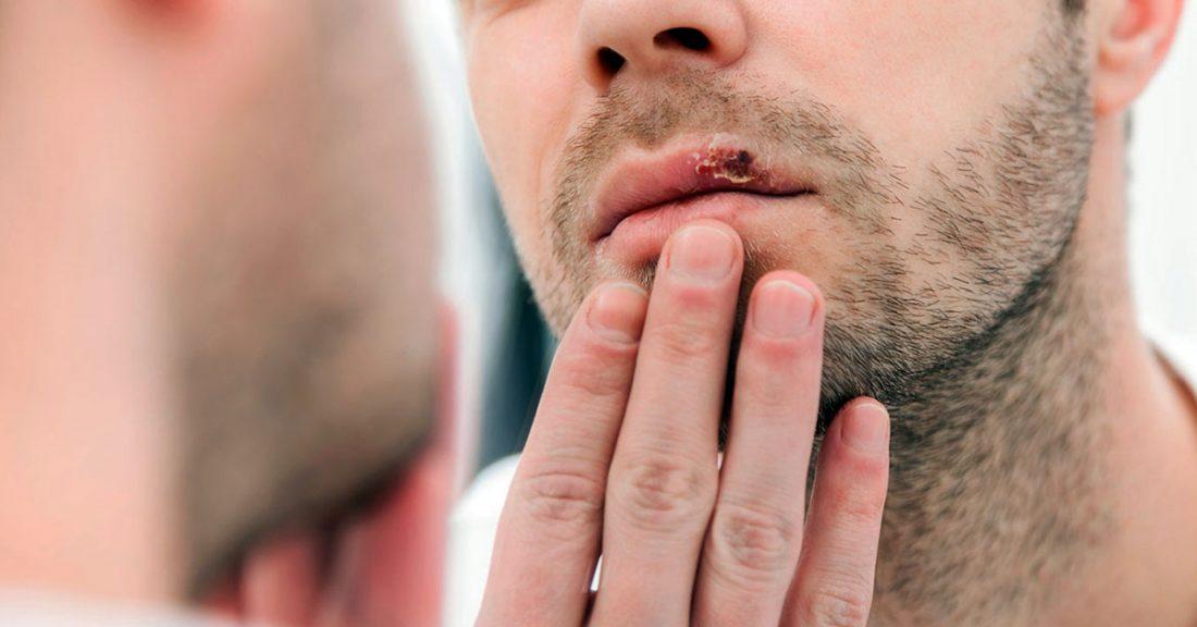 Herpes labial ¿cómo eliminarlo rápidamente? - Clínica Dental Ramis Tauler