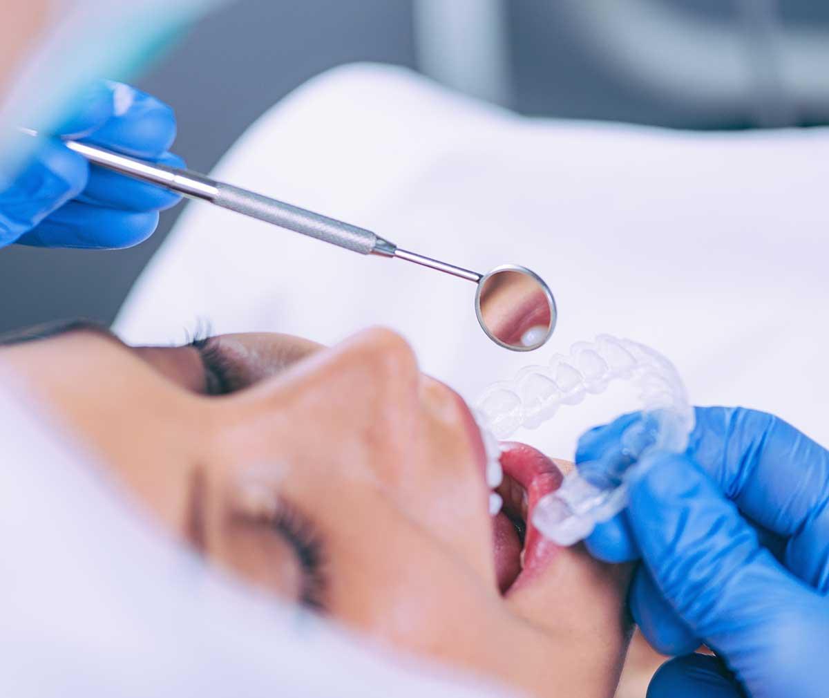 Retenedor de ortodoncia - Clínica dental Ramís Tauler
